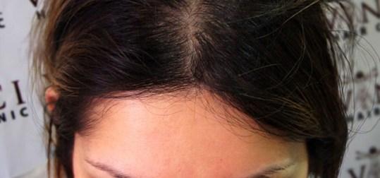 after-fut-hair-transplant-3-642x300