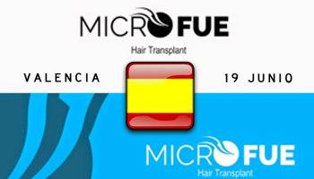 Microfue el trasplante capilar de alcance