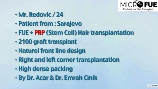 paciente grafs frontal 24