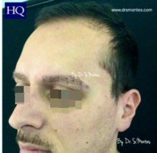 Después del implante de cejas