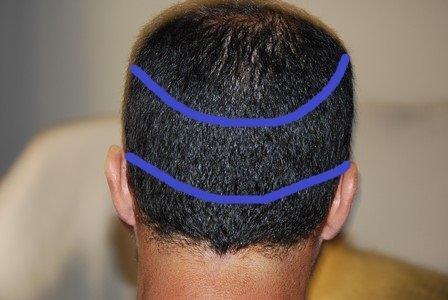 ¿Quieres saber si eres candidato a un injerto de cabello?