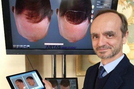 El doctor responde sobre la cirugía del cabello