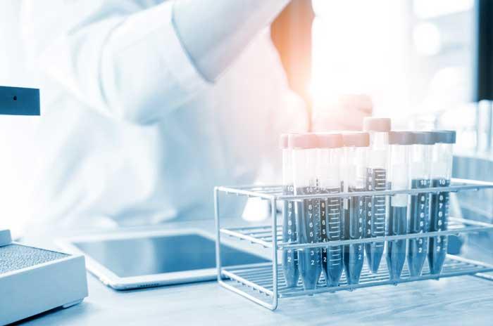 Plasma Hair- Plasma rico en plaquetas - Tratamiento capilar