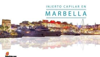 Injerto-Capilar-en-Marbella
