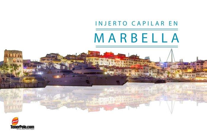 Clínicas y doctores de injerto capilar en Marbella, las técnicas que aplican, sus precios y opiniones