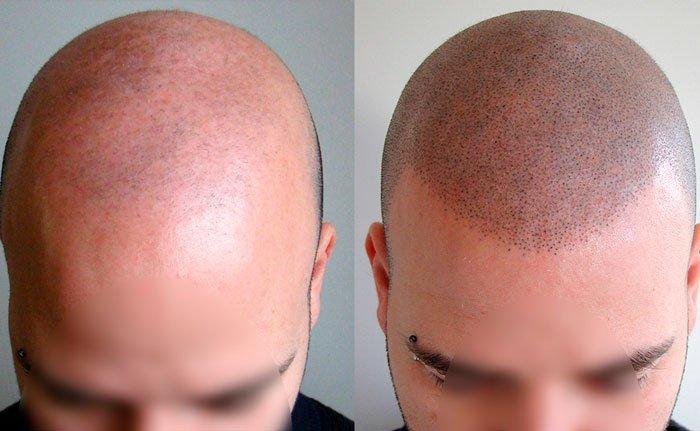 Tricopigmentación-Capilar