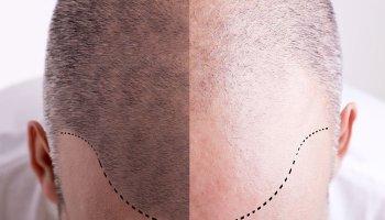 Tricopigmentación - Micropigmentación Capilar - SMP