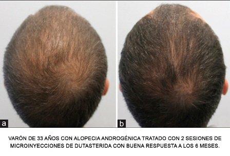Ultimo milagro anticalvicie – Mesoterapia conDudasterida