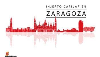 Injerto-Capilar-en-Zaragoza