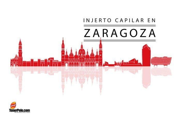 Injerto Capilar en Zaragoza