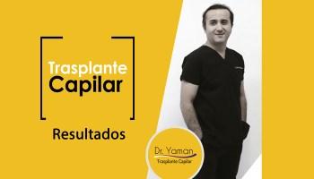 Resultados-del-Dr-Yaman---Injerto-Capilar