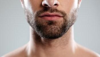 5-Cosas-que-debes-saber-sobre-el-trasplante-de-barba-del-Dr-Resul-Yaman