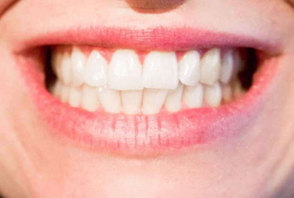 Di' addio al mal di denti: i rimedi naturali per alleviare il dolore