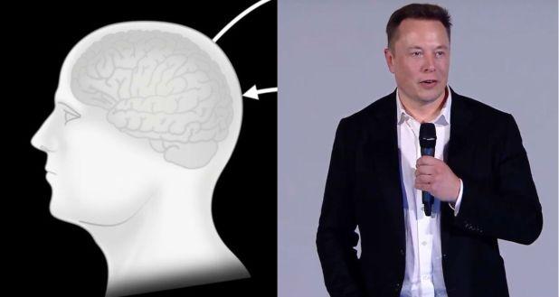 elon musk neuralink ile ilgili görsel sonucu