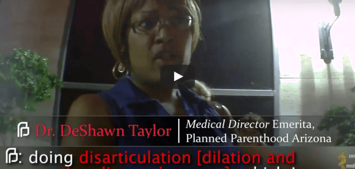 Video shows Planned Parenthood abortionist discussing babies born alive in botched abortions