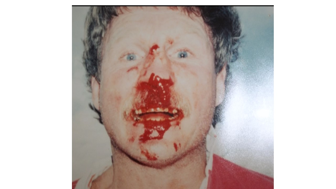Jeff Kolberg bloody nose
