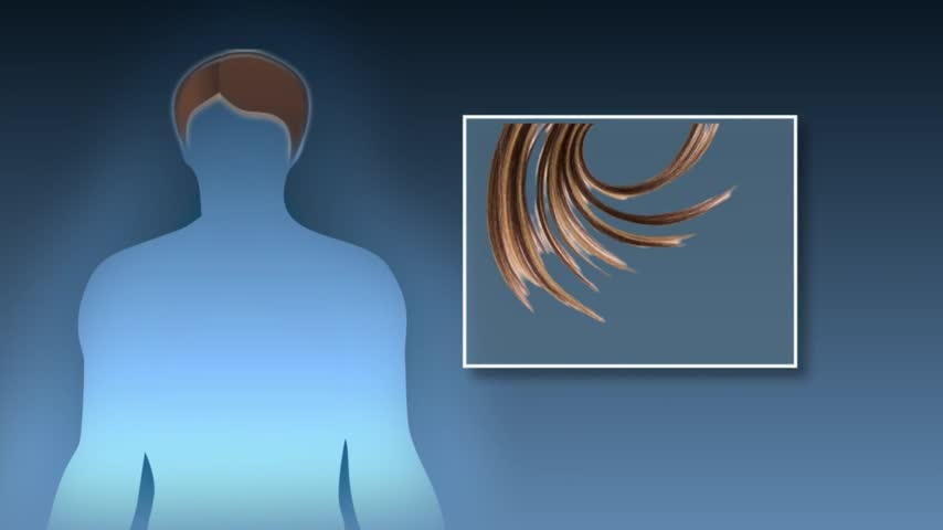 Health Cast- Hair Loss-Growing Hair_24901173
