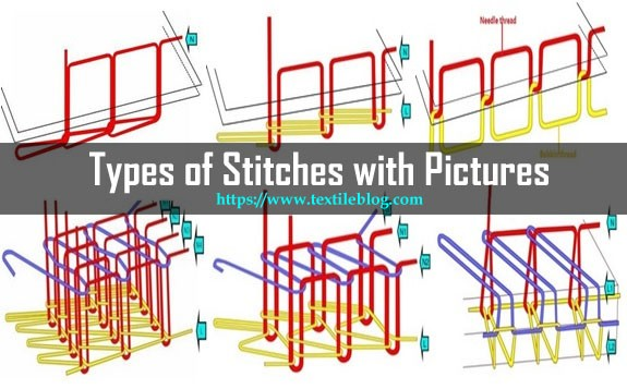 types of stitches