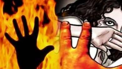 9 year old girl burnt