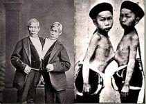 Discover Thailand The Original Siamese Twins