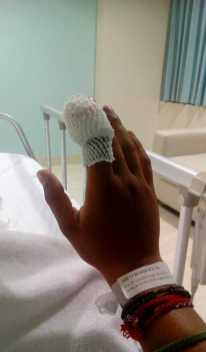 Ošetřená ruka po uštknutí Chřestýšovec běloretý Kambodža