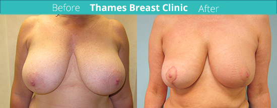 thames-breast-clinic-oncoplastic-surgery-case-11