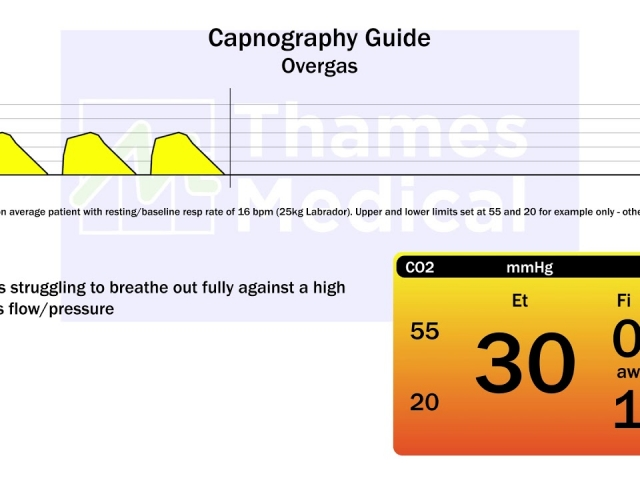 maxresdefault 17 1 1 640x480 c - The Capnography Resource Centre