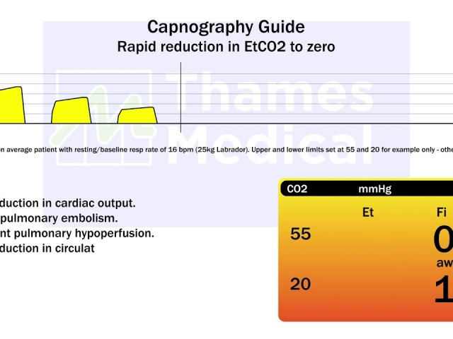maxresdefault 18 1 1 640x480 c - The Capnography Resource Centre