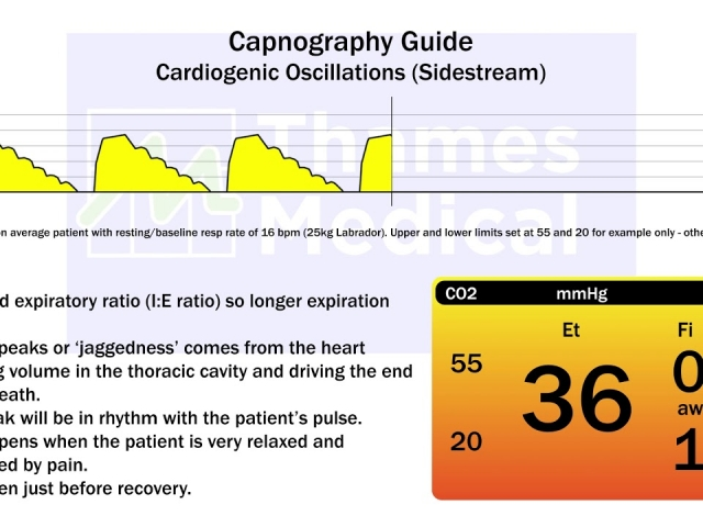 maxresdefault 20 1 1 640x480 c - The Capnography Resource Centre