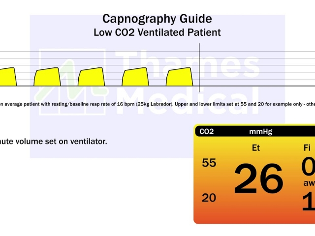 maxresdefault 23 1 640x480 c - The Capnography Resource Centre