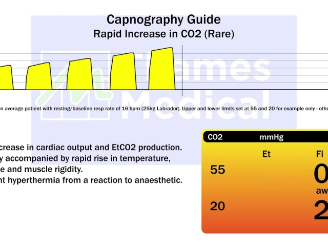 maxresdefault 25 1 640x480 c - The Capnography Resource Centre