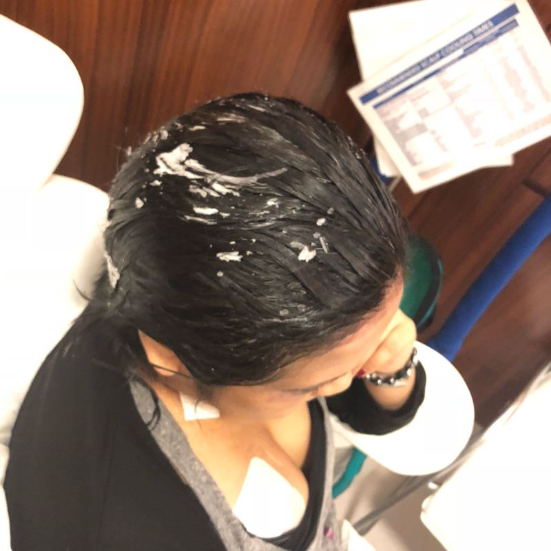 Hair after scalp cooling