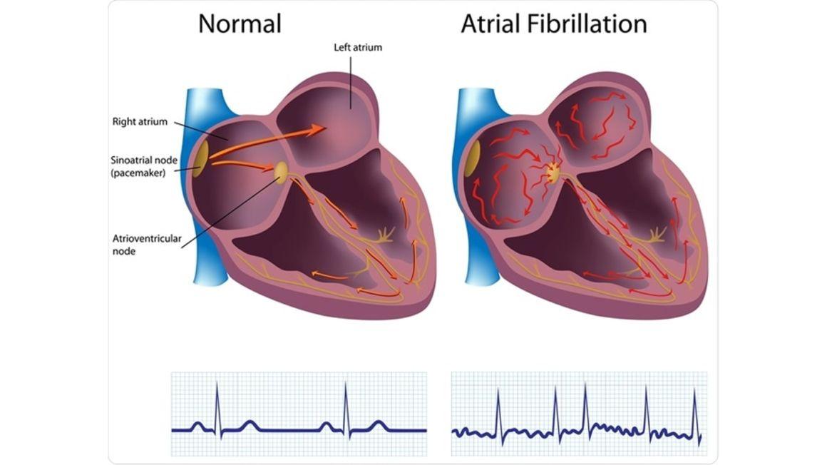 Chronic atrial fibrillation a condition that killed President Magufuli