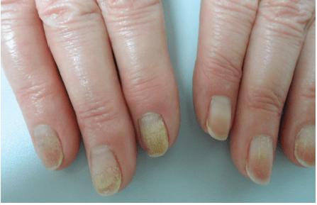 Pictures Psoriatic Arthritis 1