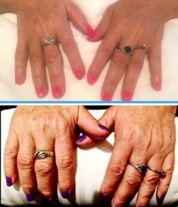 לפני ואחרי טיפול בפיגמנטציה