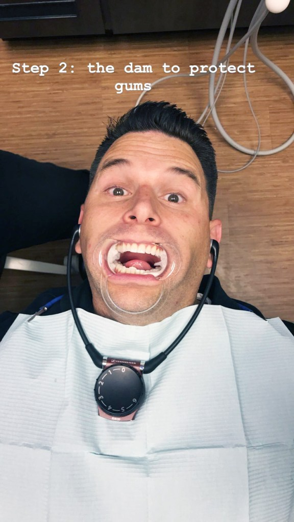 Teeth Bleaching | Deal Worth Doing by The Modern Dad