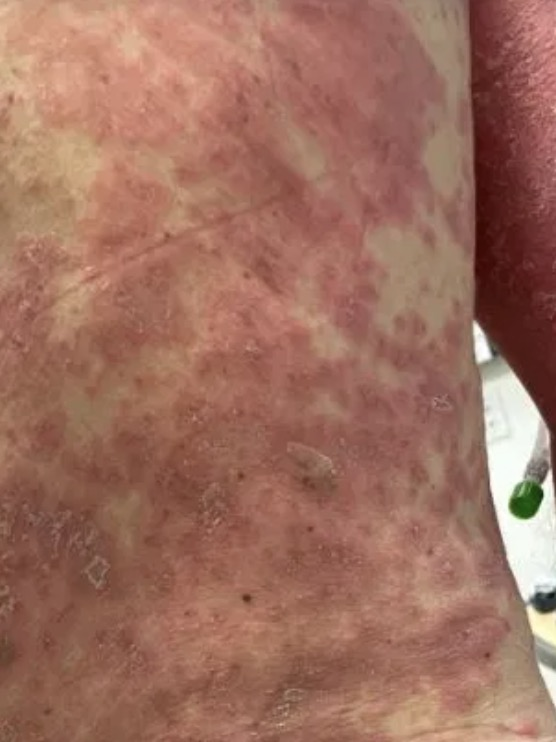 The rash began on his armpit but spread over his whole body