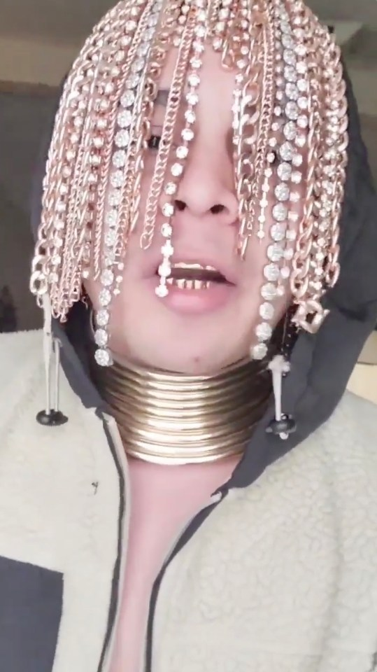Rapper Dan Sur says he's the first to mint his hair with surgically implanted gold chains.