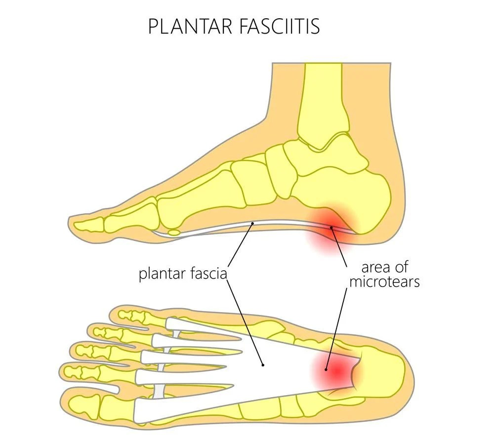 hight resolution of and if you re here i probably don t need to tell you that it causes pain in your foot you usually feel it in the bottom of your heel but for some people
