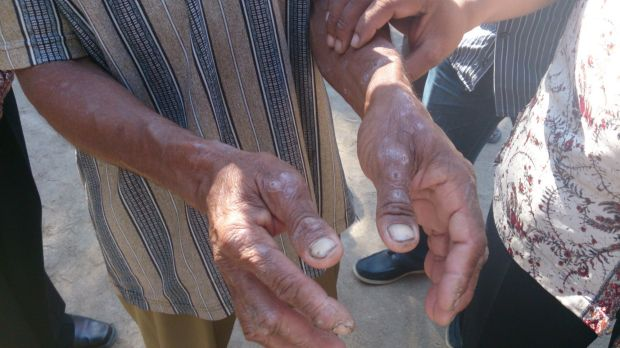 The hands of a man in Indonesia's East Nusa Tenggara province in August 2013. People in the region complain of itchy ...