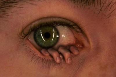 Hand in Eye
