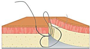 figure 8 suture step 6