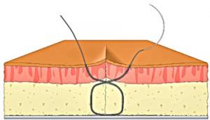 Figure of 8 step 9