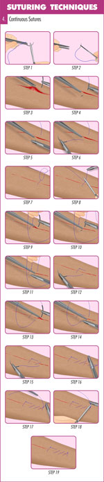 Continuous (Running) Suture Suturing technique