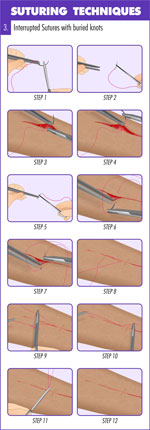 Interrupted_sutures_with_buried_knots_suture_technique