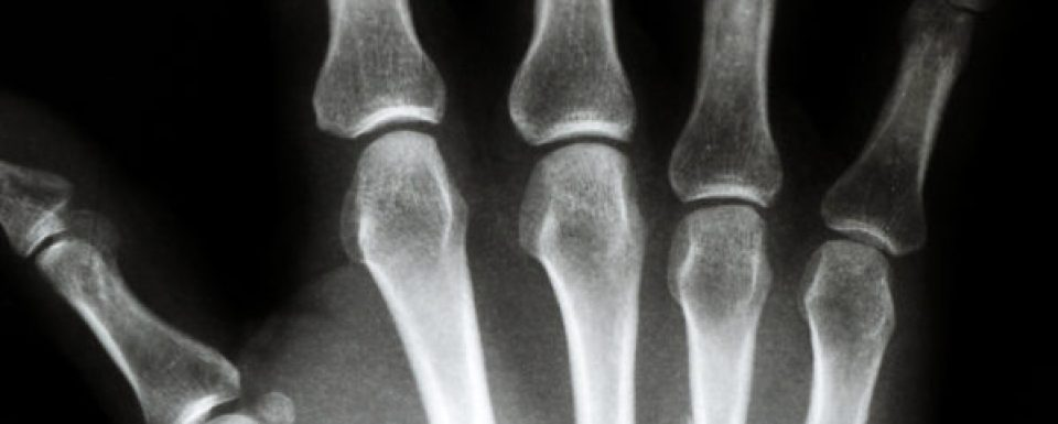 What is Orthopedics? <br>(Also: Orthopaedics)