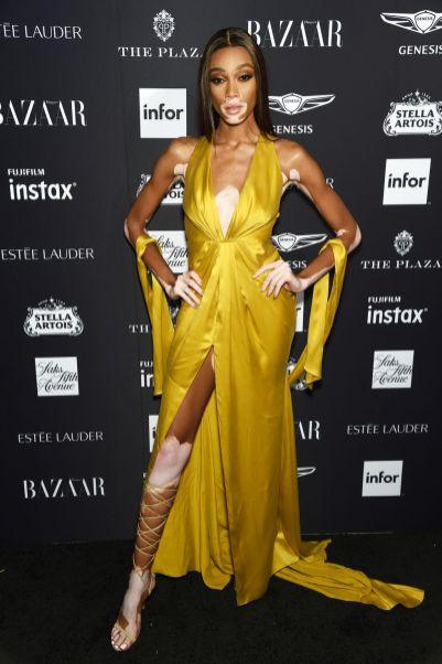 Winnie Harlow al Harper's Bazaar Icons party durante la New York Fashion Week
