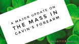 A major update on the mass in Gavin's forearm