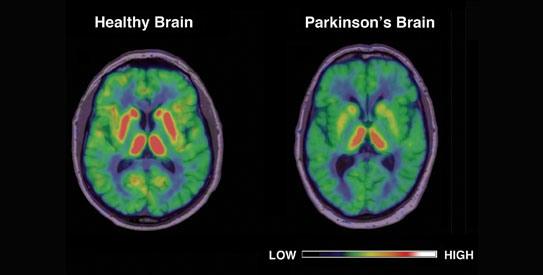 Healthy vs diseases brain
