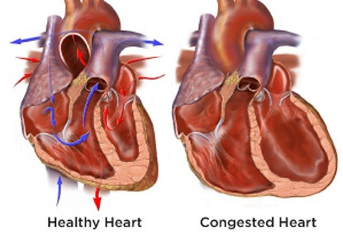 Heart diseases congested heart